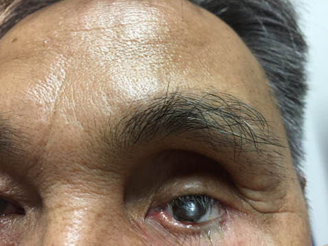 A Patient wearing a rough Artificial Eye with excess Discharge