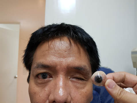Artificial Eye Fitting