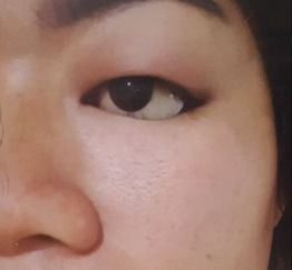 Swollen Eyelid with an Artificial Eye